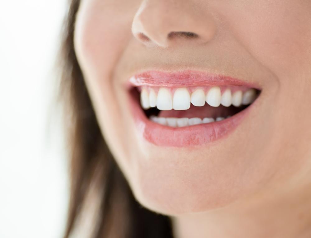 Benafica Dental Insurance